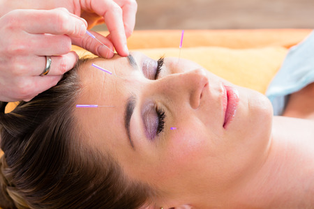 acupuncture: Therapist setting acupuncture needles on woman in course of acupuncture treatment Stock Photo