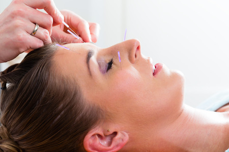 acupuncture needles: Therapist setting acupuncture needles on woman in course of acupuncture treatment Stock Photo