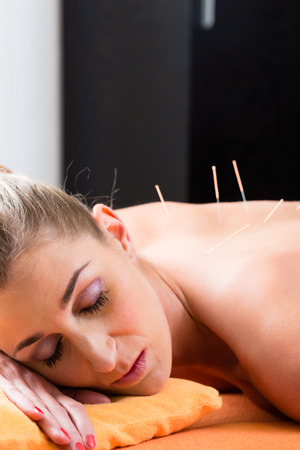 tcm: Woman at acupuncture session with needles in back having alternative therapy