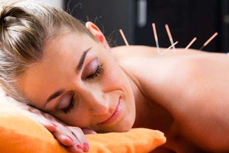 Donna alla seduta di agopuntura con aghi nel posteriore con una terapia alternativa