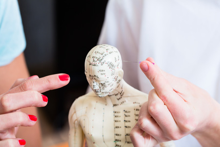 alternative practitioner: Alternative practitioner explaining acupuncture pinching needles in model with meridians painted on Stock Photo