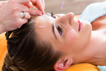 alternative practitioner: Therapist setting acupuncture needles on woman in course of acupuncture treatment Stock Photo