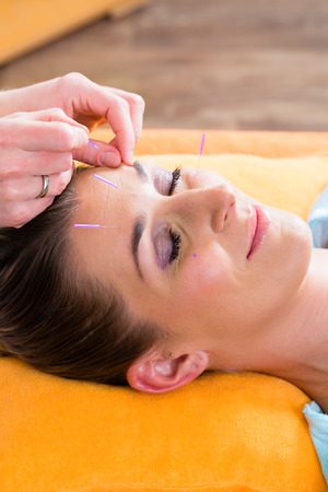 pinching: Therapist setting acupuncture needles on woman in course of acupuncture treatment Stock Photo