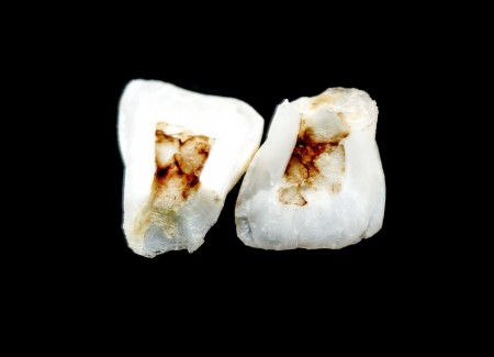 carious: Human tooth with caries
