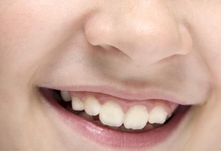 lips child smile