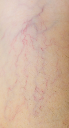 varicose veins: varicose veins on the skin Stock Photo