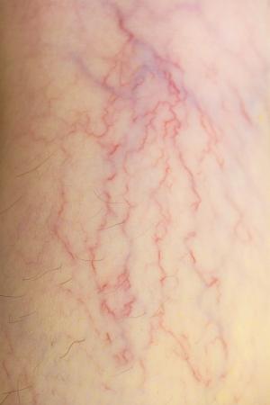 spataderen op de huid Stockfoto