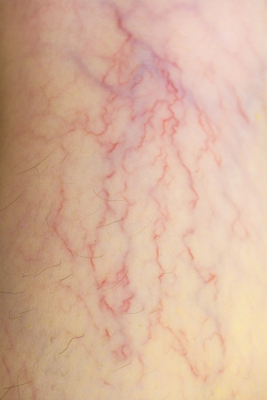 varicose veins on the skin Stock Photo