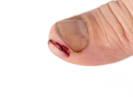 incision: injured finger with dirty open cut Stock Photo