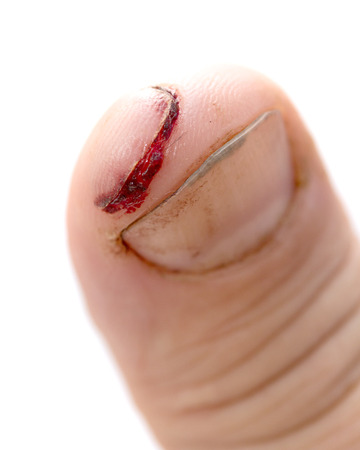 injured finger with dirty open cut Stock Photo