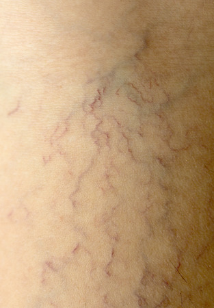 varicose veins: Varicose veins on the skin