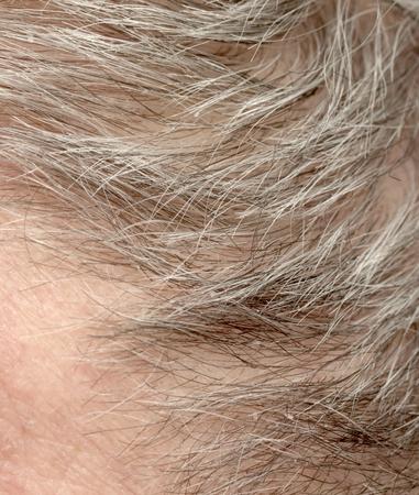 the elderly residence: gray haired mans head