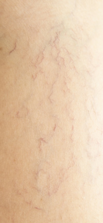 varicose veins: varicose veins on the skin Stock Photo