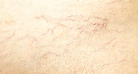 varicose veins on the skin Stok Fotoğraf