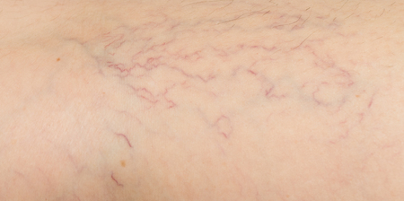 varicose veins on the skin Banco de Imagens