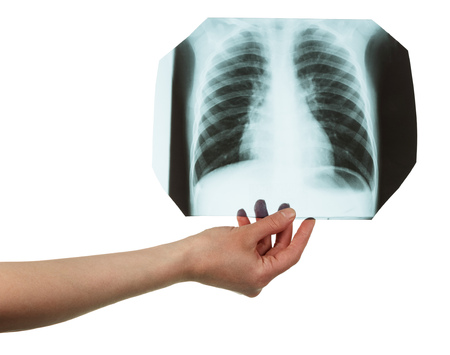 Radiograph of a lung in a female hand, isolated on white