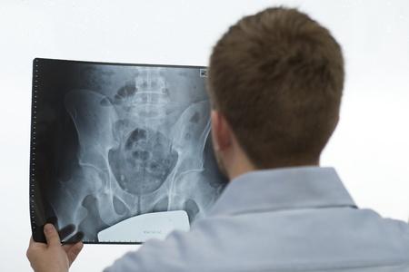 osteoporosis: El an�lisis de una imagen de rayos X Foto de archivo