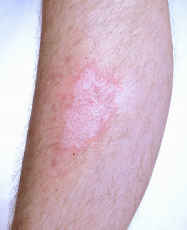 desease: Irritated skin desease vitiligo on the leg.