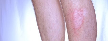Panoramic image of two legs. On the other one irritated skin disease vitiligopsoriasis.