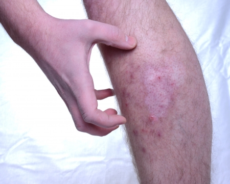 itchy: Itchy skin disease. Pigment missing in the skin. Stock Photo