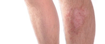 Panoramic image of skin infection on a leg. Isolated on white.