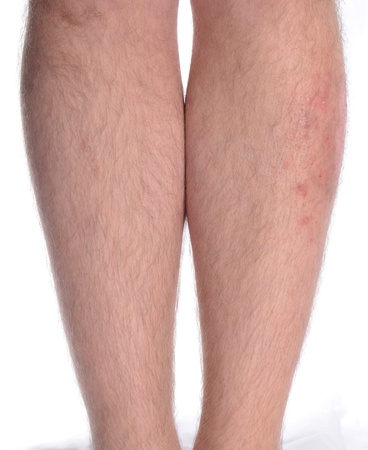 Patient suffering from psoriasis and vitiligo on the left leg. Zdjęcie Seryjne