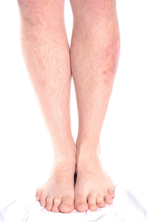 Psoriasis and vitiligo on the left leg.