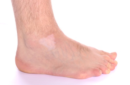 Pigment loss on the foot caused by vitiligo.