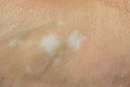 irritable: Vitiligo spots on the ankle