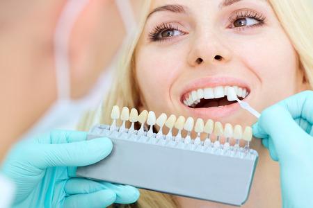 치과에서 아름 다운 미소로 여자의 근접 촬영. 치과 치료 개념