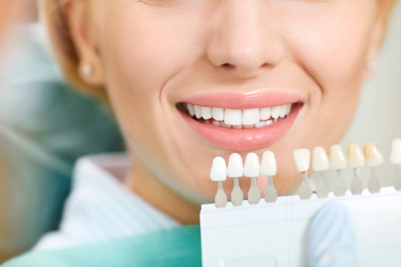 Teeth whitening dental clinic. Dentist selects the shade of the teeth to the patient waman with whitening samples. Banco de Imagens