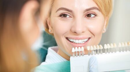 Teeth whitening dental clinic. Dentist selects the shade of the teeth to the patient woman with whitening samples. Zdjęcie Seryjne