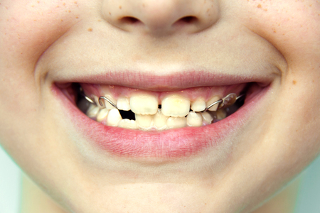 A child smiles with an anatomical orthodontic plate made of flesh-colored pink acrylic and metal attached to the upper jaw of the milk teeth to maintain proper bite. Front view. Close up.