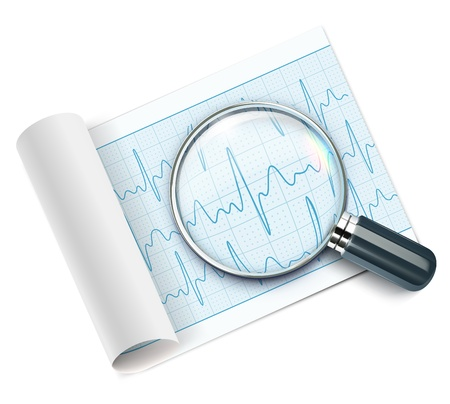 lifestyle disease: illustration of cardiogram under magnifying glass