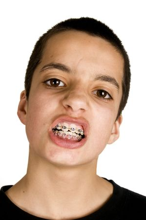 young handsome teenage is showing his dental braces photo
