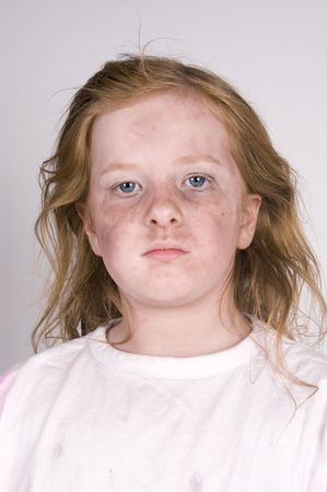 disheartened: dirty homeless kid Stock Photo