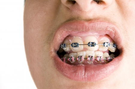 colourfull dental braces Stock Photo