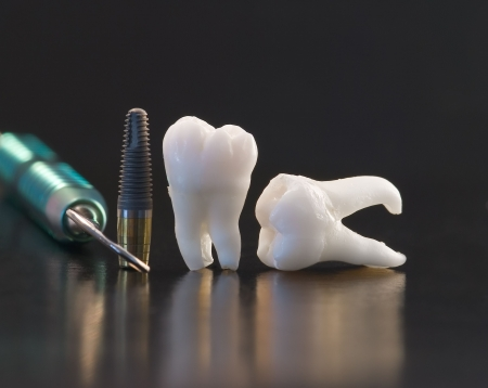 Human Wisdom Teeth and Implant photo