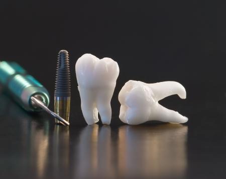 odontologia: Humanos de las muelas del juicio y el implante