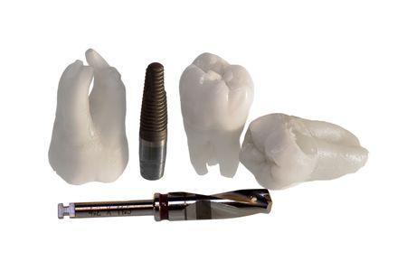 Human Wisdom Teeth And Dental Implants Stock Photo - 5378625