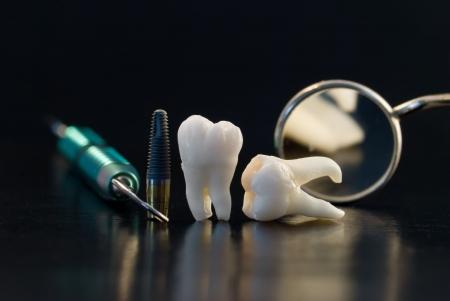 Human Wisdom Teeth and Implant photo