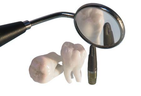 Dental Implant Stock Photo - 5532715