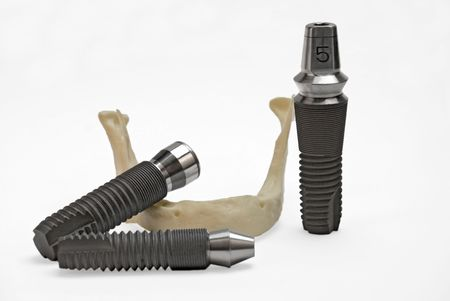 Models of dental titanium implants and plastic human jaw photo