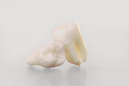 Real Human Wisdom teeth photo