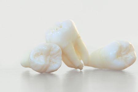 Real Human Wisdom teeth Stock Photo - 6077026