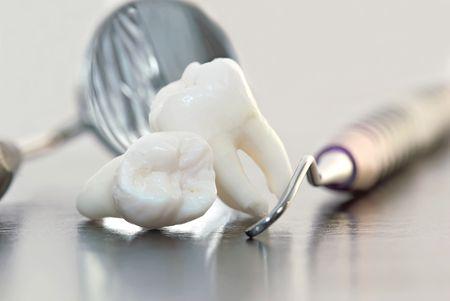 distraction: real human wisdom teeth and dental instruments Stock Photo