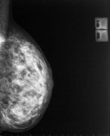 mammogram:  x-ray mammogram