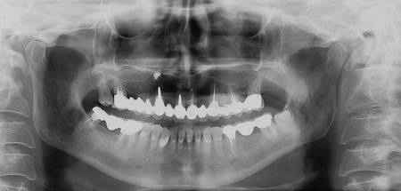 jaw:  Dental x-ray. ceramic teeth at upper and lower jaw