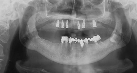 lower teeth:  Dental x-ray. Ceramic teeth at lower jaw and implants at upper jaw Stock Photo