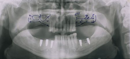 implant:  Dental x-ray. Doctors marks of future surgery at upper jaw and implants at lower jaw